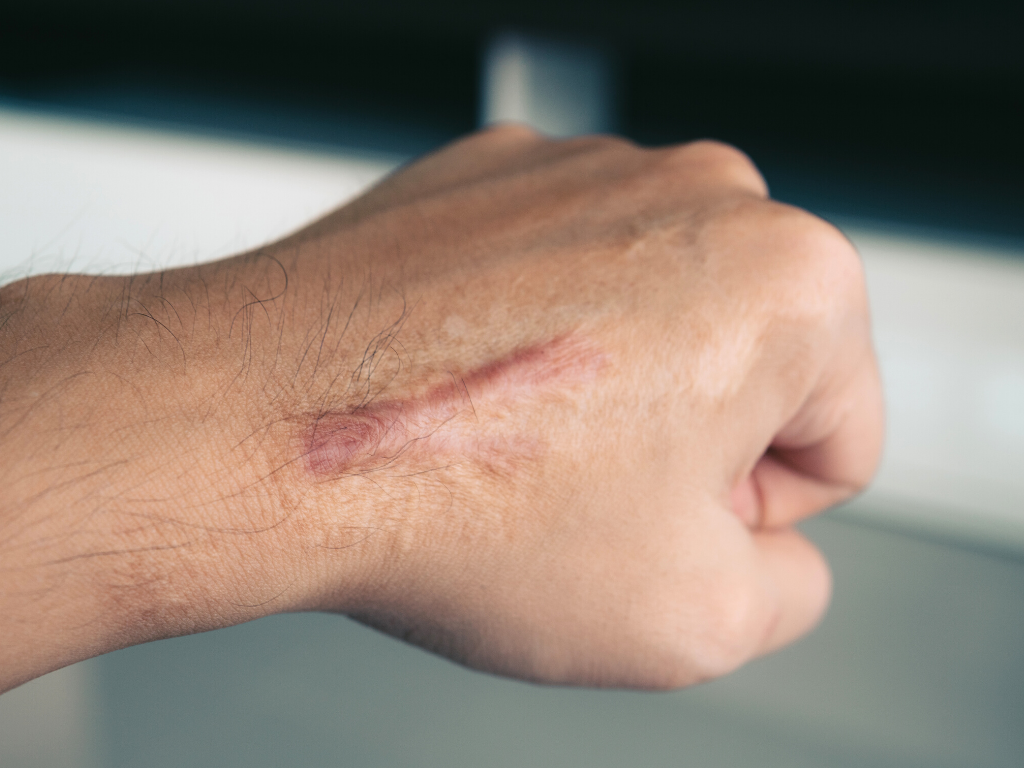 Prevent lacerations like the one that made a big scar on this man's hand